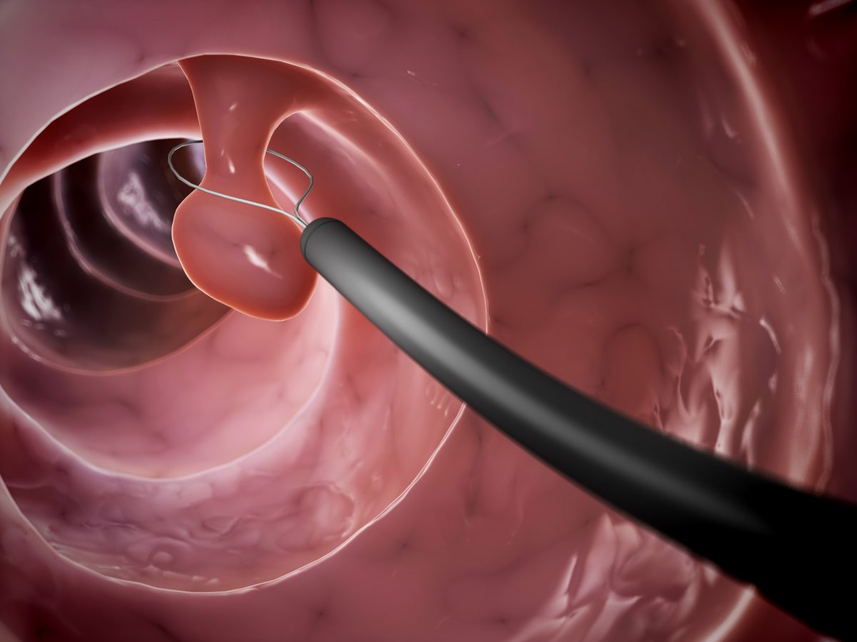 What Is A Polyp What Are The Risk Factors For Polyps And When Can Polyps Turn Into Cancer Salerno Medical Associates Llp